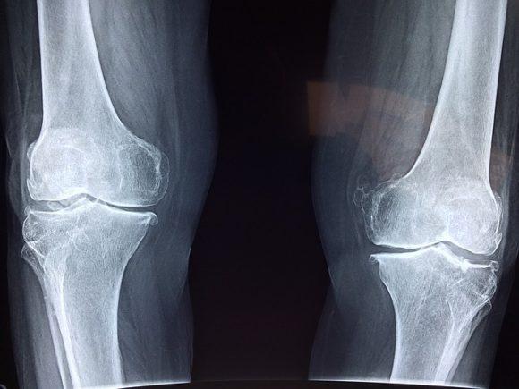 articulaciones de rodilla